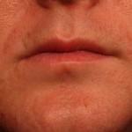 鼻の下ニキビ