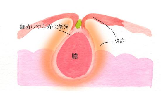 黄色ニキビ(膿疱)