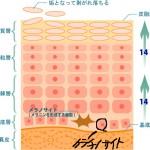 『ターンオーバーが早い』と肌が乾燥、ニキビ肌荒れを引き起こす!?
