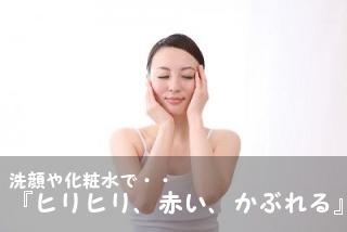 洗顔化粧水ヒリヒリ