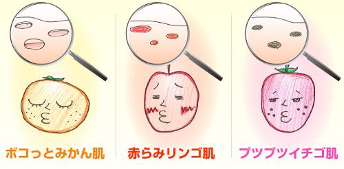 ニキビ跡消える化粧水リプロスキン6