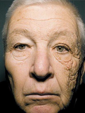 紫外線肌への影響