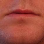 【口周り】あご鼻の下のニキビが繰り返し治らない原因と治す方法
