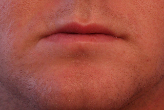 鼻の下あごのニキビ治す